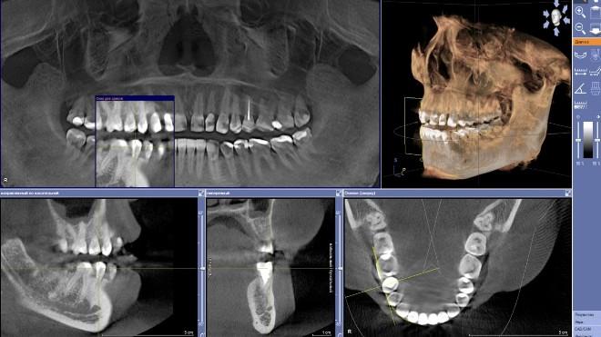 3Д снимок зубов