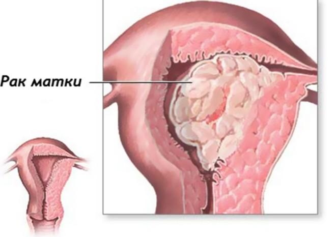 Что такое рак матки