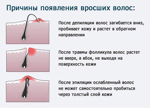 Как избавиться от вросших волос после депиляции