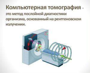 КТ (компьютерная томография)