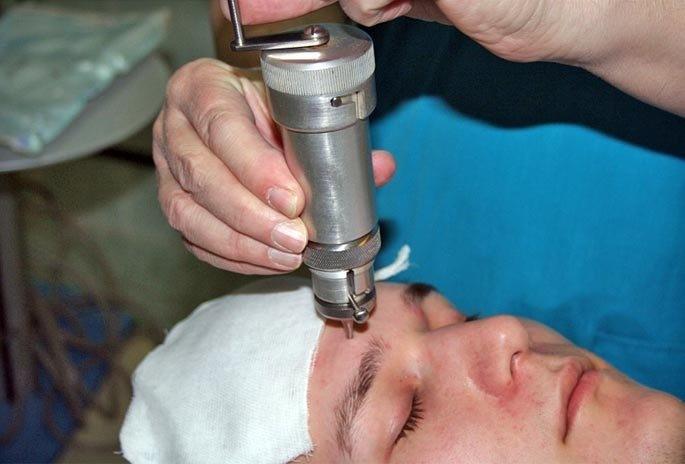 Выполнение трепанопункции проводится по строгим медицинским показаниям
