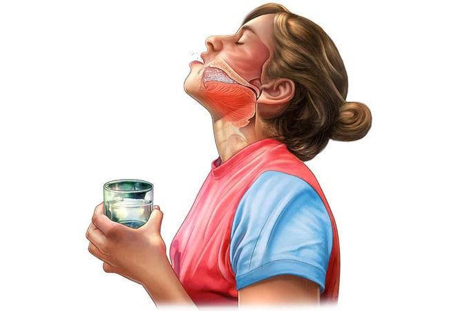 Полоскание горла растворами при фолликулярной ангине помогает быстрее снять болевой синдром при глотании