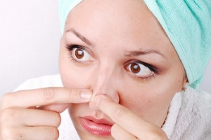 Причины прыщей на носу у женщин