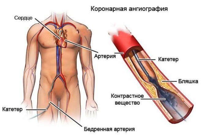 Что такое коронарная ангиография