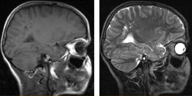 Периваскулярные пространства Вирхова-Робина на снимках МРТ