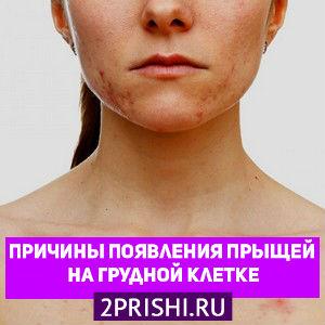 Прыщи на грудной клетке у женщин