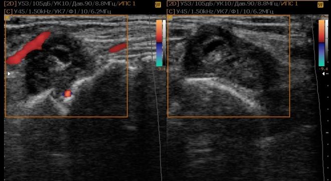 Снимок голеностопного сустава на УЗИ