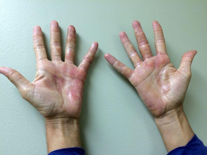 Сыпь на руках и на лице причины и профилактика