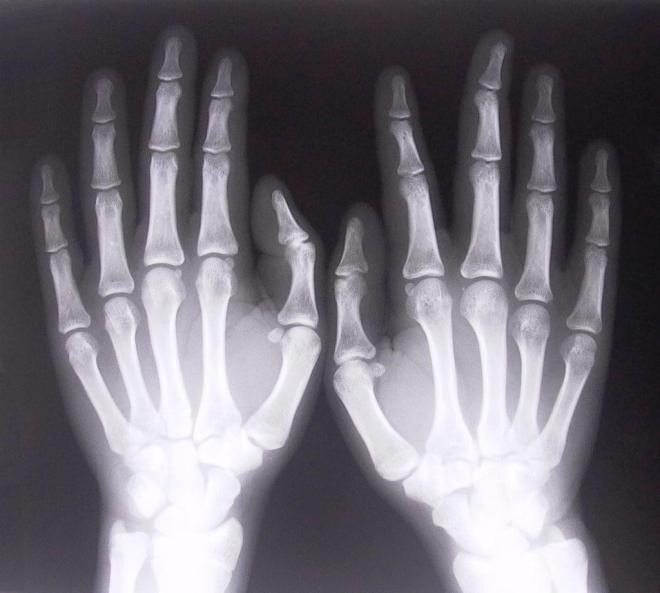 Рентгенограмма кисти