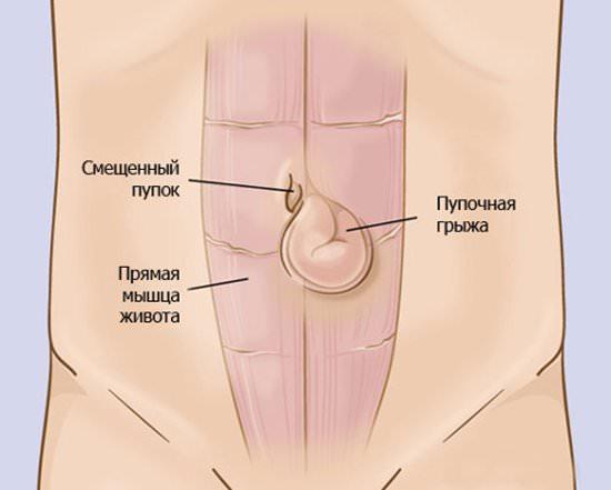 Пупочная грыжа: фото, симптомы и способы лечения