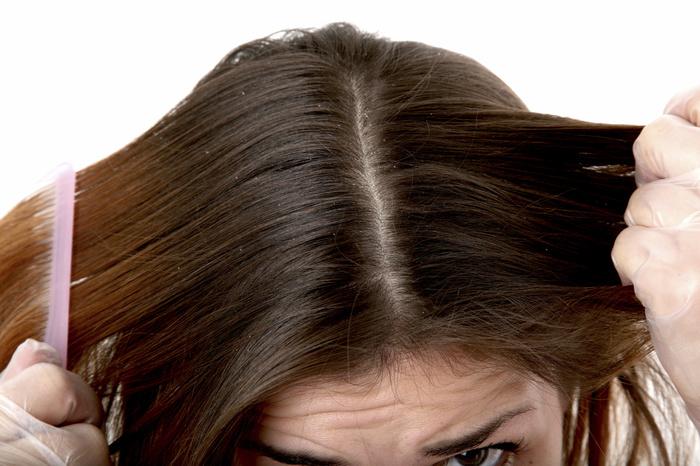 Крапива для волос от выпадения и применение отвара против перхоти