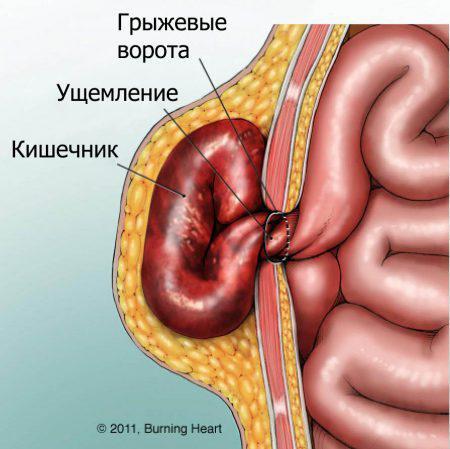 Паховая грыжа у мужчин: симптомы, фото, лечение