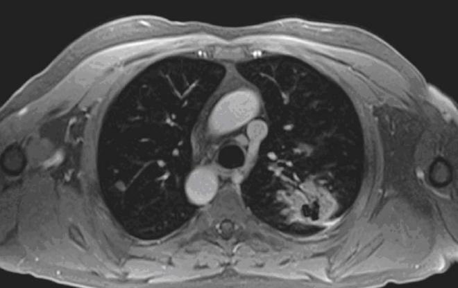 Снимок МРТ легких