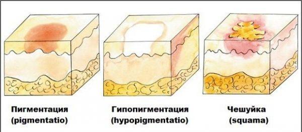 Нарушение пигментации