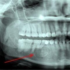 Киста зуба на снимке