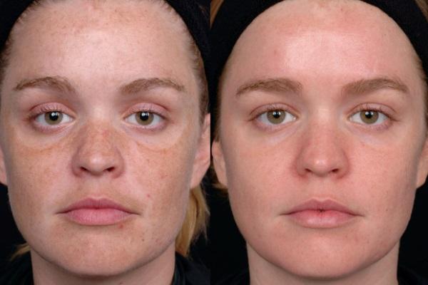 Аппаратная косметология в домашних условиях для лица