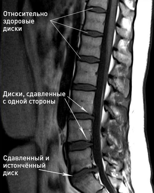 Как делают магнитно-резонансную томографию спины