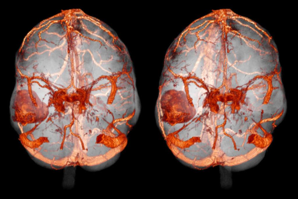 сосуды при эпилепсии