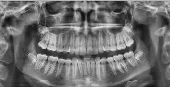 Как выглядит снимок челюсти