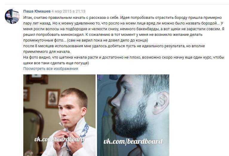 Миноксидил для бороды отзывы
