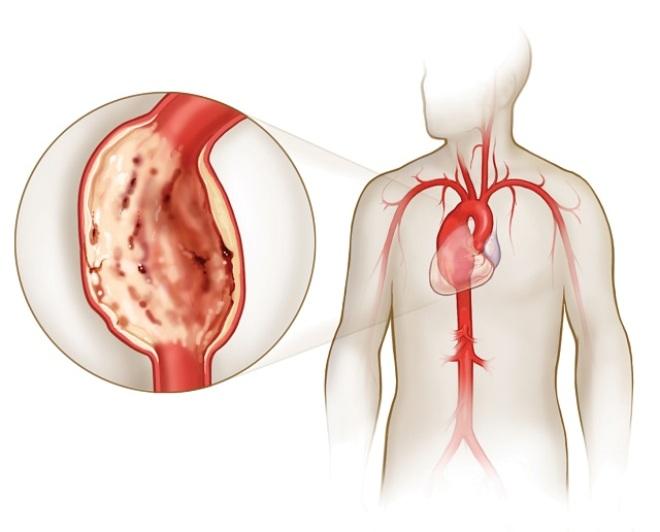 Подключичная и сонная артерии