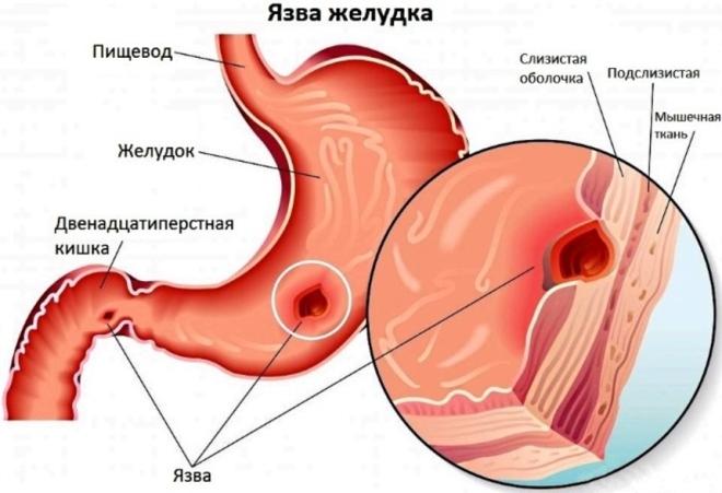 Что такое язва желудка
