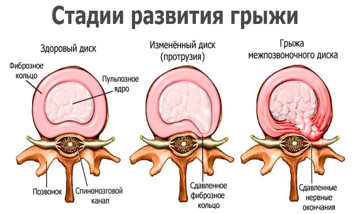 Магнитно-резонансная томография при беременности: возможный вред