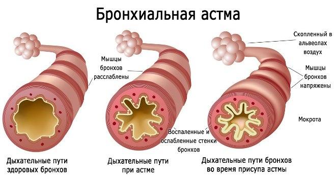 Суть бронхиальной астмы