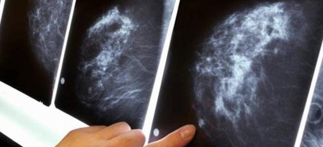 Обзор: УЗИ или маммография