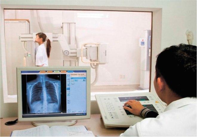 Цифровой рентген легких