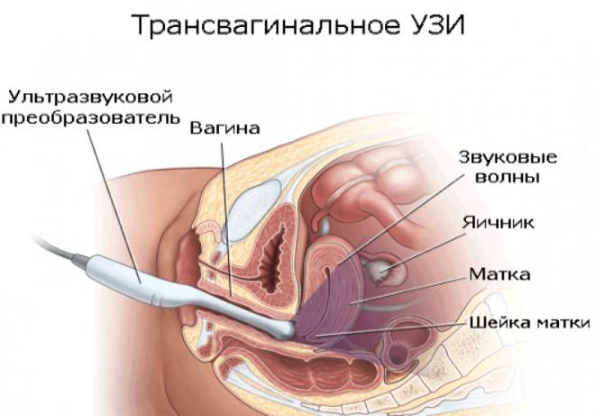 Трансвагинальное УЗИ матки