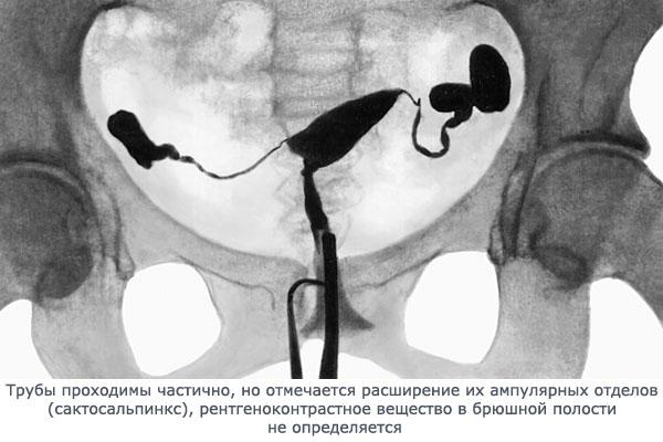 Селективная (рентгеновская) метросальпингография