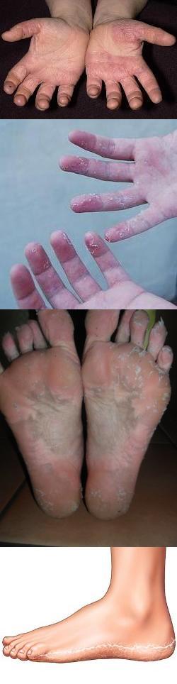 шелушится кожа на руках почему трескается кожа локтей и на пальцах