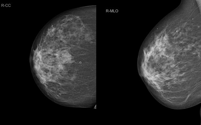 Снимок груди на маммографии