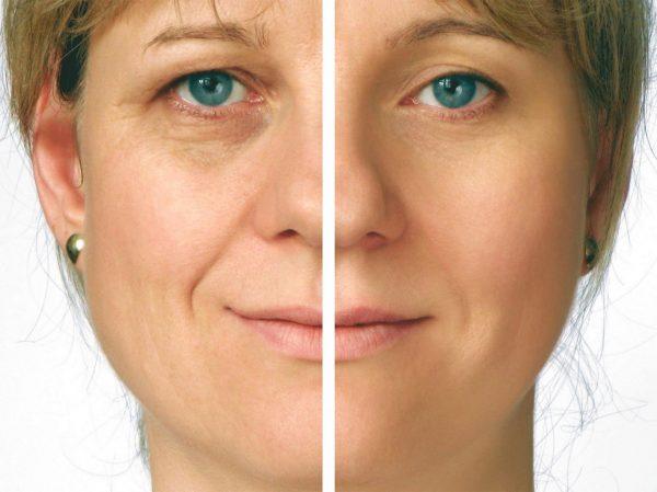 Действие масел на кожу лица