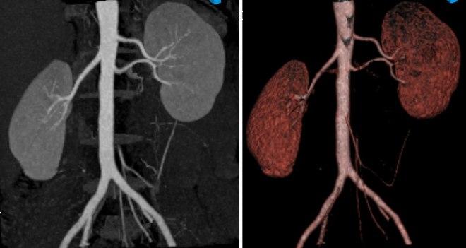 МРТ почек с контрастом и без