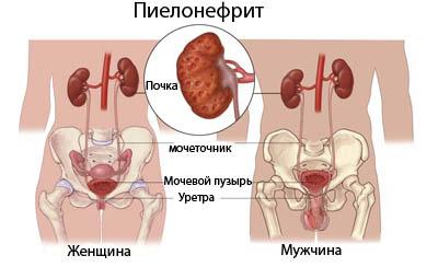 Острый пиелонефрит
