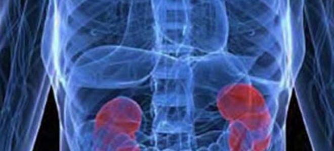 В каких случаях проводится рентген почек