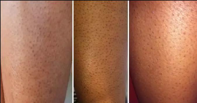 как избавиться от черных точек на ногах после бритья и на пальцах