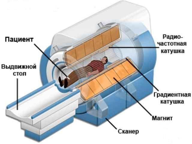 На данном фото представлено устройство аппарата МРТ