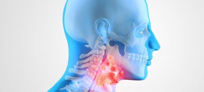Особенности диагностики заболеваний гортани при помощи КТ