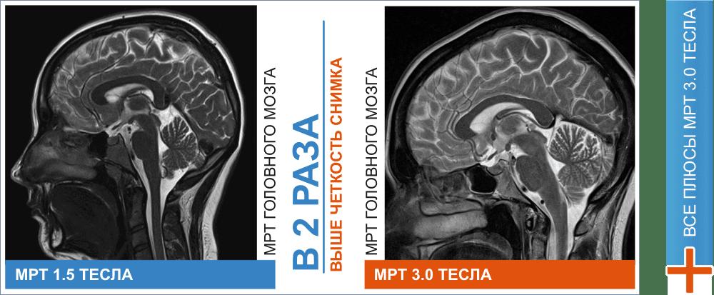 Отличия диагностик МРТ головного мозга и сосудов