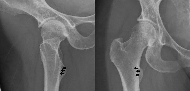 Рентгеновский снимок тазобедренного сустава с остеопорозом