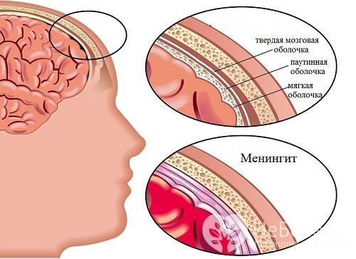 Гнойный менингит: симптомы у детей и взрослых, лечение и прогноз