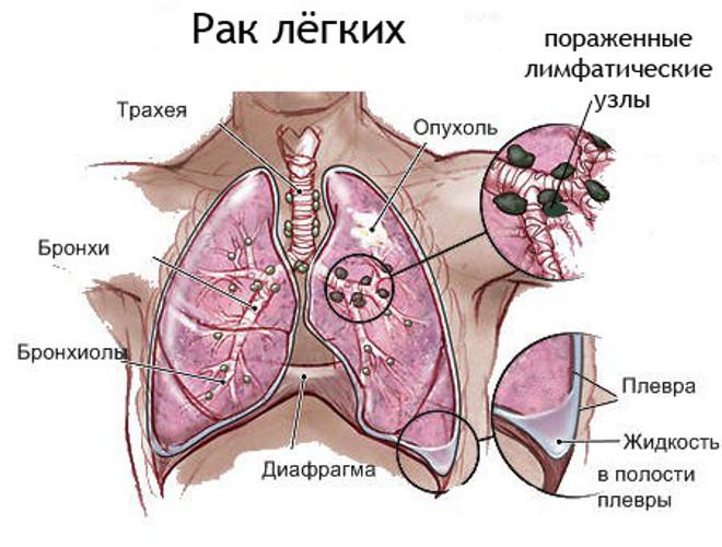Схема поражения легких раком