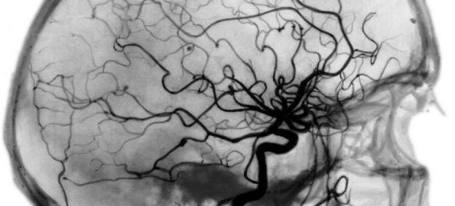 Что такое КТ ангиография и ее проведение