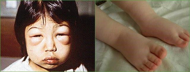 Отеки у ребенка при гломерулонефрите