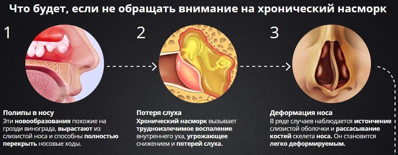 МРТ и КТ пазух носа: когда применяют