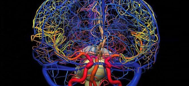 Для чего проводится ангиография сосудов головного мозга