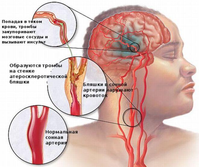 Атеросклеротические бляшки, тромбы